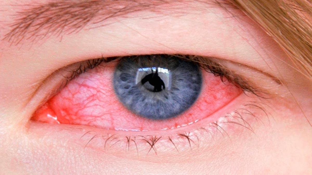 Конъюнктивит — один из распространенных глазных недугов